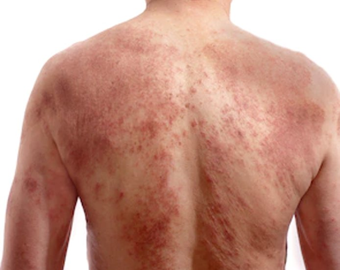 Rashes and Skin Conditions