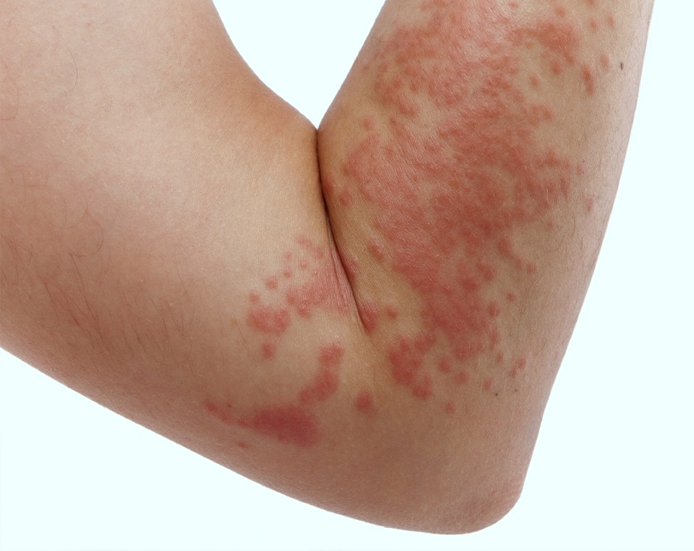 Cellulitis Skin Infections